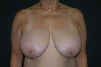 Breast Lift Andrew Smith, MD, FACS, Plastic and Reconstructive Surgery Before & After | Patient 19 Photo 0 Thumb