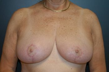Breast Lift Andrew Smith, MD, FACS, Plastic and Reconstructive Surgery Before & After | Patient 19 Photo 1 Thumb