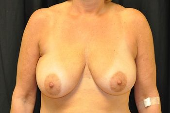 Breast Lift Andrew Smith, MD, FACS, Plastic and Reconstructive Surgery Before & After | Patient 20 Photo 0