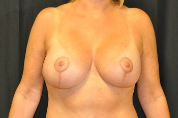 Breast Lift Andrew Smith, MD, FACS, Plastic and Reconstructive Surgery Before & After | Patient 20 Photo 1