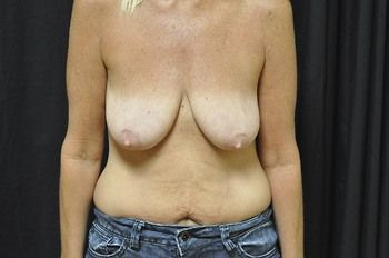 Breast Lift Andrew Smith, MD, FACS, Plastic and Reconstructive Surgery Before & After | Patient 22 Photo 0 Thumb