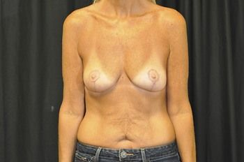 Breast Lift Andrew Smith, MD, FACS, Plastic and Reconstructive Surgery Before & After | Patient 22 Photo 1 Thumb