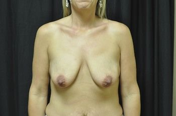 Breast Lift Andrew Smith, MD, FACS, Plastic and Reconstructive Surgery Before & After | Patient 24 Photo 0