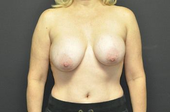Breast Lift Before & After Patient 25