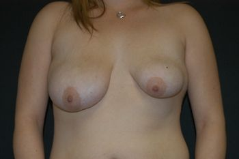 Breast Lift Andrew Smith, MD, FACS, Plastic and Reconstructive Surgery Before & After | Patient 26 Photo 0 Thumb