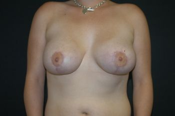 Breast Lift Andrew Smith, MD, FACS, Plastic and Reconstructive Surgery Before & After | Patient 26 Photo 1 Thumb
