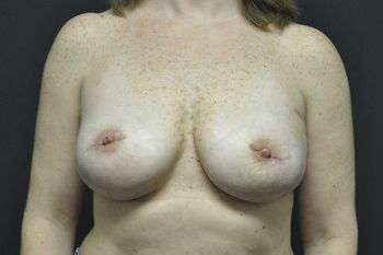 Breast Reconstruction Andrew Smith, MD, FACS, Plastic and Reconstructive Surgery Before & After | Patient 03 Photo 1 Thumb