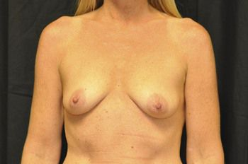 Breast Reconstruction Before & After Patient 05