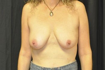 Breast Reconstruction Andrew Smith, MD, FACS, Plastic and Reconstructive Surgery Before & After | Patient 06 Photo 0