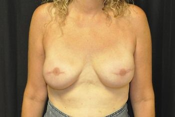 Breast Reconstruction Andrew Smith, MD, FACS, Plastic and Reconstructive Surgery Before & After | Patient 06 Photo 1