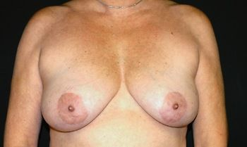 Breast Reconstruction Andrew Smith, MD, FACS, Plastic and Reconstructive Surgery Before & After | Patient 08 Photo 0
