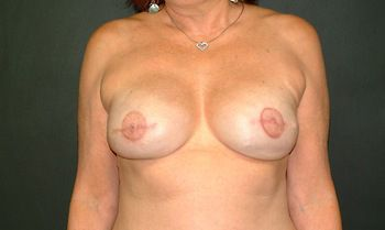 Breast Reconstruction Andrew Smith, MD, FACS, Plastic and Reconstructive Surgery Before & After | Patient 08 Photo 1