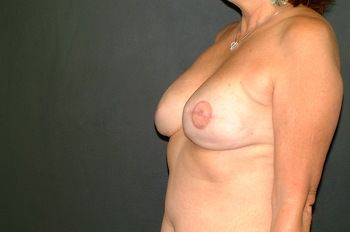 Breast Reconstruction Andrew Smith, MD, FACS, Plastic and Reconstructive Surgery Before & After | Patient 08 Photo 3