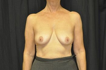 Breast Reconstruction Andrew Smith, MD, FACS, Plastic and Reconstructive Surgery Before & After | Patient 09 Photo 0 Thumb