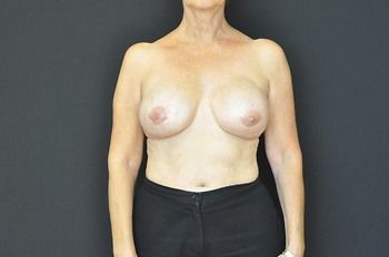 Breast Reconstruction Andrew Smith, MD, FACS, Plastic and Reconstructive Surgery Before & After | Patient 09 Photo 1 Thumb