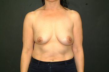 Breast Reconstruction Before & After Patient 10