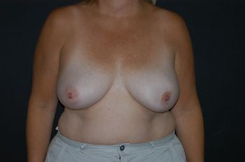 Breast Reconstruction Andrew Smith, MD, FACS, Plastic and Reconstructive Surgery Before & After | Patient 11 Photo 0