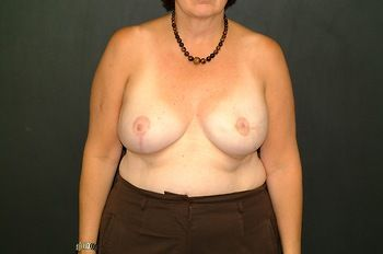 Breast Reconstruction Andrew Smith, MD, FACS, Plastic and Reconstructive Surgery Before & After | Patient 11 Photo 1
