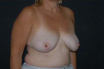 Breast Reconstruction Andrew Smith, MD, FACS, Plastic and Reconstructive Surgery Before & After | Patient 11 Photo 2