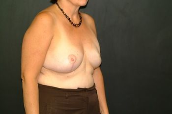 Breast Reconstruction Andrew Smith, MD, FACS, Plastic and Reconstructive Surgery Before & After | Patient 11 Photo 3