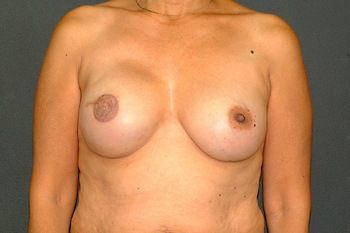 Breast Reconstruction Andrew Smith, MD, FACS, Plastic and Reconstructive Surgery Before & After | Patient 12 Photo 1