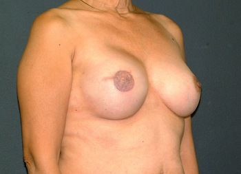 Breast Reconstruction Andrew Smith, MD, FACS, Plastic and Reconstructive Surgery Before & After | Patient 12 Photo 3