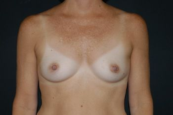 Breast Reconstruction Andrew Smith, MD, FACS, Plastic and Reconstructive Surgery Before & After | Patient 13 Photo 0