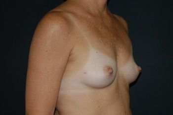 Breast Reconstruction Andrew Smith, MD, FACS, Plastic and Reconstructive Surgery Before & After | Patient 13 Photo 2