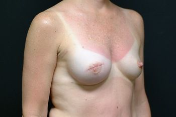 Breast Reconstruction Andrew Smith, MD, FACS, Plastic and Reconstructive Surgery Before & After | Patient 13 Photo 3