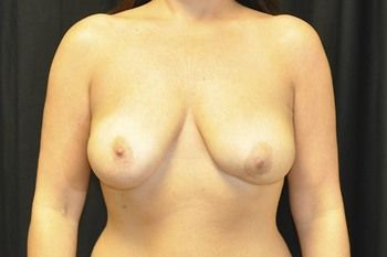 Breast Reconstruction Andrew Smith, MD, FACS, Plastic and Reconstructive Surgery Before & After | Patient 14 Photo 0