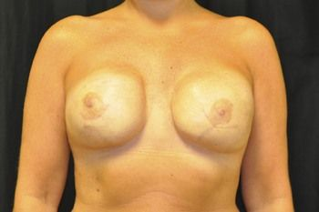 Breast Reconstruction Andrew Smith, MD, FACS, Plastic and Reconstructive Surgery Before & After | Patient 14 Photo 1