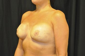 Breast Reconstruction Andrew Smith, MD, FACS, Plastic and Reconstructive Surgery Before & After | Patient 14 Photo 3