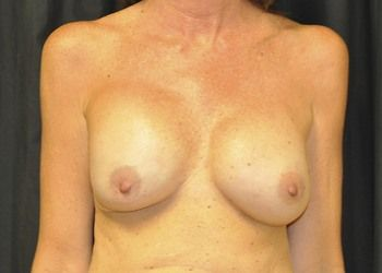 Breast Reconstruction Andrew Smith, MD, FACS, Plastic and Reconstructive Surgery Before & After | Patient 16 Photo 0