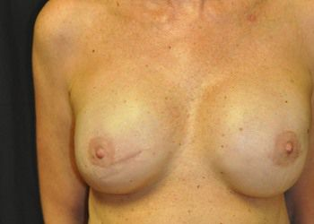 Breast Reconstruction Andrew Smith, MD, FACS, Plastic and Reconstructive Surgery Before & After | Patient 16 Photo 1