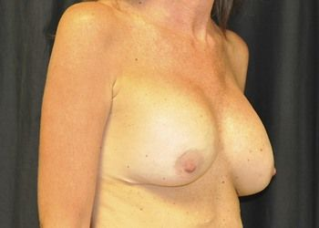 Breast Reconstruction Andrew Smith, MD, FACS, Plastic and Reconstructive Surgery Before & After | Patient 16 Photo 2