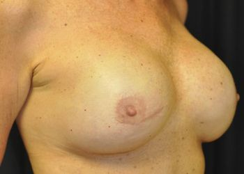 Breast Reconstruction Andrew Smith, MD, FACS, Plastic and Reconstructive Surgery Before & After | Patient 16 Photo 3