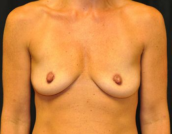 Breast Reconstruction Andrew Smith, MD, FACS, Plastic and Reconstructive Surgery Before & After | Patient 17 Photo 0 Thumb