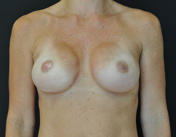 Breast Reconstruction Andrew Smith, MD, FACS, Plastic and Reconstructive Surgery Before & After | Patient 17 Photo 1 Thumb