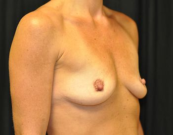 Breast Reconstruction Andrew Smith, MD, FACS, Plastic and Reconstructive Surgery Before & After | Patient 17 Photo 2 Thumb