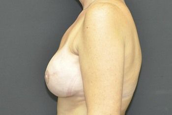Breast Reconstruction Before & After Patient 18