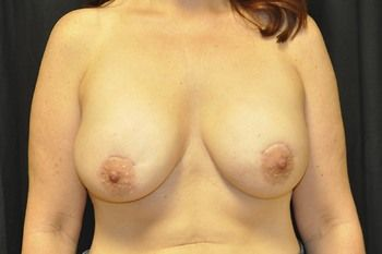 Breast Reconstruction Andrew Smith, MD, FACS, Plastic and Reconstructive Surgery Before & After | Patient 19 Photo 1 Thumb
