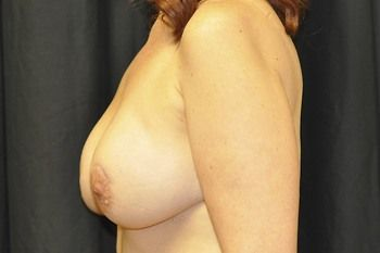 Breast Reconstruction Andrew Smith, MD, FACS, Plastic and Reconstructive Surgery Before & After | Patient 19 Photo 3 Thumb