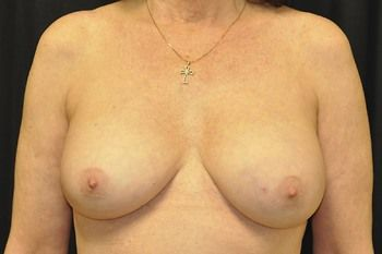 Breast Reconstruction Andrew Smith, MD, FACS, Plastic and Reconstructive Surgery Before & After | Patient 20 Photo 0