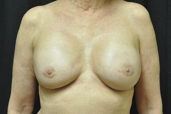 Breast Reconstruction Andrew Smith, MD, FACS, Plastic and Reconstructive Surgery Before & After | Patient 20 Photo 1