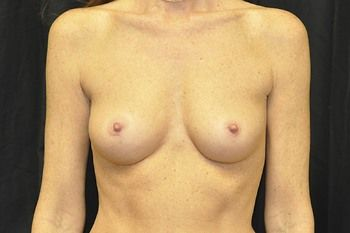 Breast Reconstruction Andrew Smith, MD, FACS, Plastic and Reconstructive Surgery Before & After | Patient 21 Photo 0
