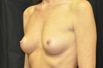 Breast Reconstruction Andrew Smith, MD, FACS, Plastic and Reconstructive Surgery Before & After | Patient 21 Photo 2