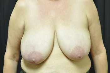 Breast Reconstruction Andrew Smith, MD, FACS, Plastic and Reconstructive Surgery Before & After | Patient 22 Photo 0 Thumb