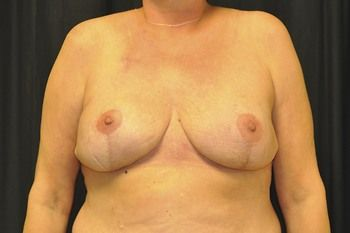 Breast Reconstruction Andrew Smith, MD, FACS, Plastic and Reconstructive Surgery Before & After | Patient 22 Photo 1 Thumb