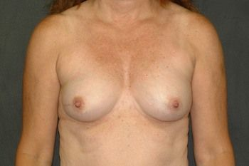 Breast Reconstruction Andrew Smith, MD, FACS, Plastic and Reconstructive Surgery Before & After | Patient 25 Photo 0