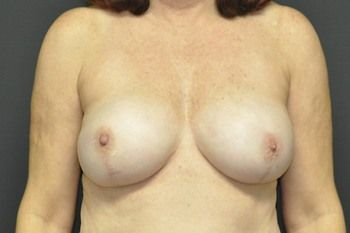 Breast Reconstruction Andrew Smith, MD, FACS, Plastic and Reconstructive Surgery Before & After | Patient 25 Photo 1